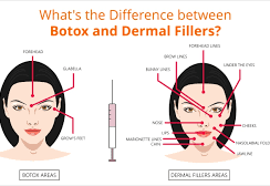 What are the Relationships between Botox and Dermal fillers?