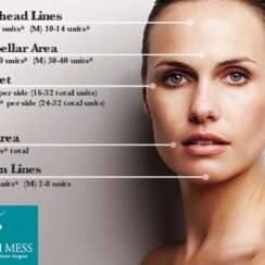 What areas does botox work best?