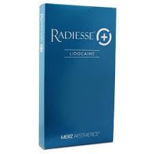 Radiesse Lidocaine (1 x 1.5ml)